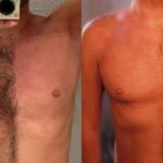 Hacks to Trim Chest and Body Hair for Men